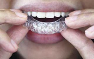 cosmetic braces clear aligners